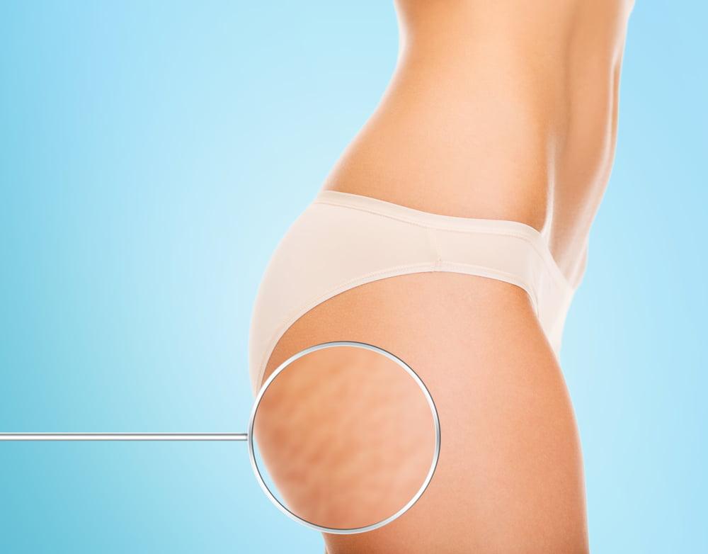 lutter contre les vergetures enceinte